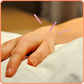 Treatment with Acupuncture in Calgary